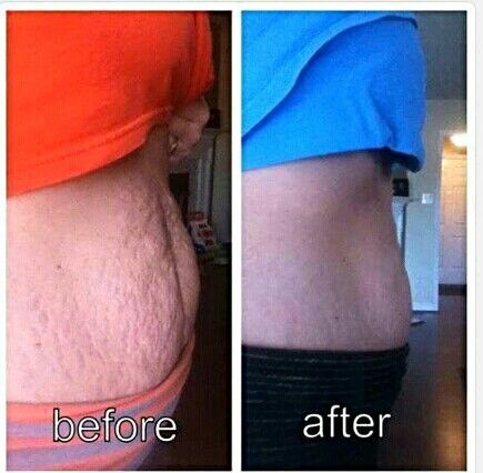 One of the best before and after pictures I've seen!