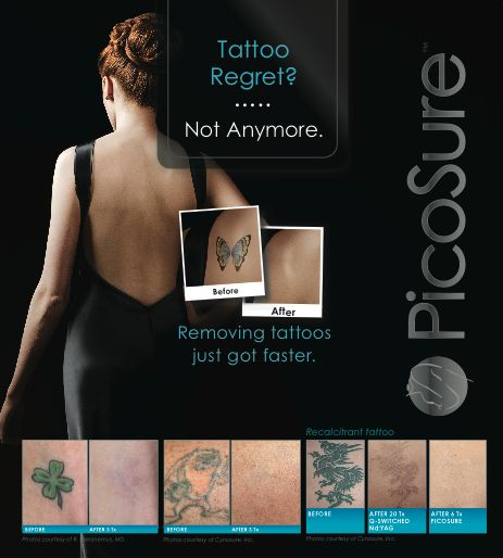 ... on Pinterest | Tattoo removal, Laser hair removal and Skin tightening