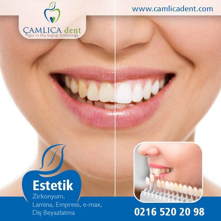 Diş beyazlatma işlemleri kliniğimizde ortalama 45 dakika sürmektedir. Daha fazla bilgi için bize ulaşabilirsiniz | 0216 520 20 98, 0545 58 900 58 - iletisim@camlicadent.com - www.camlicadent.com
