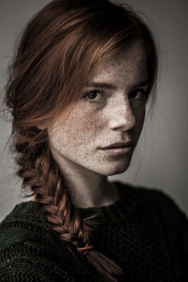 Freckled girls