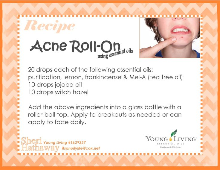 essential oil acne roll-on (note for doTERRA users Purify is similar to Purification)