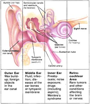 Middle Ear Fluid Infection, Outer Ear Wax Buildup