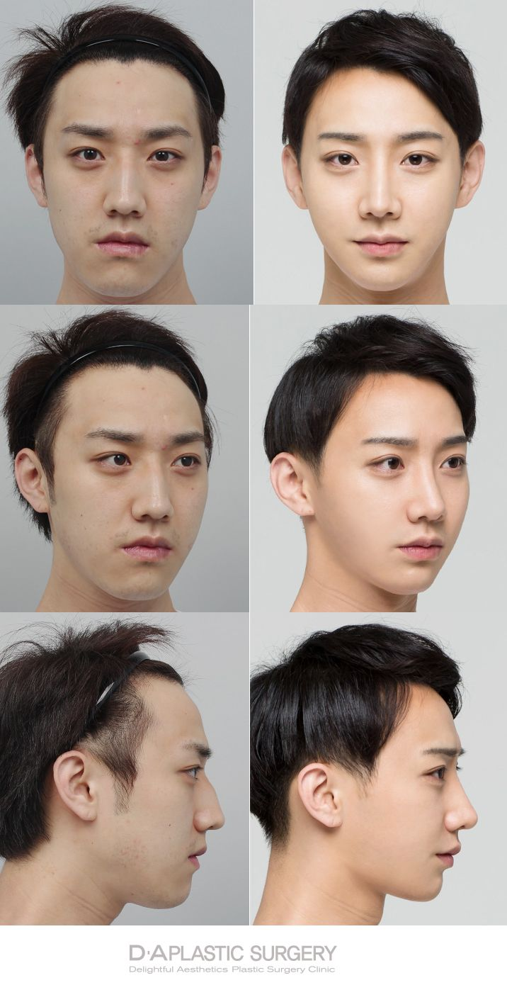 Before and after photos of real DA patients! DA plastic surgery and dermotology located in Gangnam. More info: en.daprs.com Enquiry/make a reservation: info-en@daprs.com #daplsticsurgery #daprs #plasticsurgery #cosmeticsurgery #korea  #facialcontouring #koreanplasticsurgery #jawsurgery #plasticsurgeryinkorea   #gangnam #gangnamplasticsurgery #beforeandafter #realpatients #beforeafter  #mensplasticsurgery #plasticsurgeryformen #koreanmen #koreanguy #mensjawsurgery #daplasticsurgeryformen