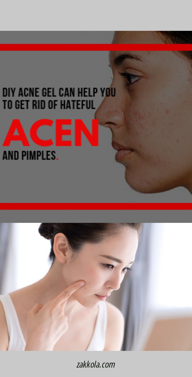 Head To The Webpage To Read More About Acne Check The Webpage For More Info Serious Skin Care Chest Acne Back Acne Treatment