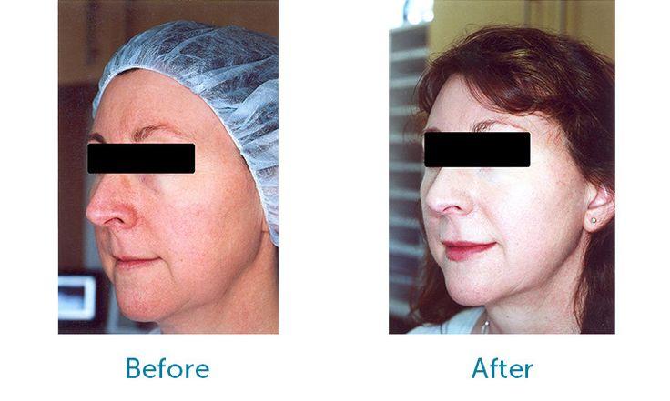 Face & Neck Lift Surgery - Patient FG Before & After Suture Facelift