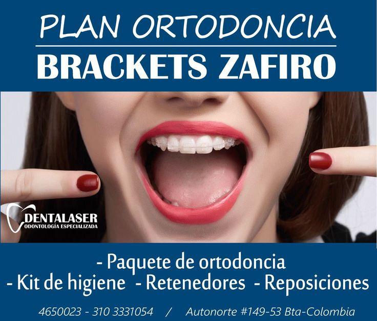 Los Brackets de Zafiro son los preferidos por pacientes que tienen una alta exigencia estética.  Son totalmente transparentes, no se manchan ni se desgastan. De esta manera puedes  mejorar tu sonrisa, sin comprometer tu imagen.  Visita nuestra Clínica y aprovecha de este excelente plan.    #Dentalaser #Ortodoncia #Brackets #Bogota #Colombia #sonrisa #BracketsZafiro