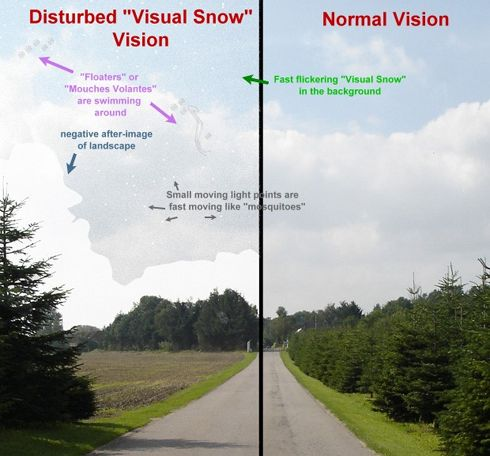 Most of the time at least part of my visual field is continuous TV-static-like tiny flickering dots. Sometimes it expands to cover my entire visual field. This is officially called visual snow. I a…