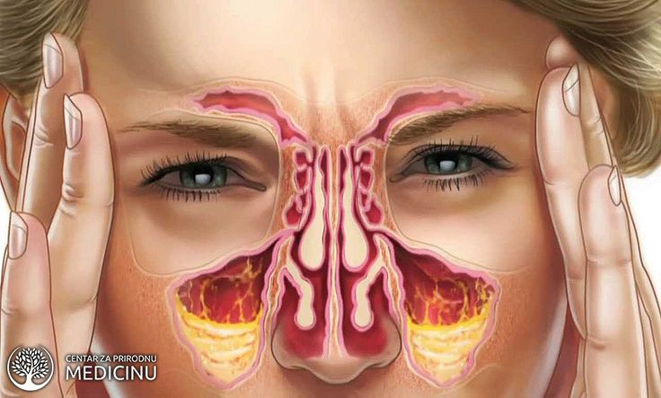 Postoji nekoliko načina da se se ispiraju sinusi. Jedan od najpopularnijih načina je ispiranje sinusa sa neti posudom/bideom za nos – u pitanju je mala keramička ili plastična posuda koja podseća na čajnik ili Aladinovu lampu. Ovaj tip irigatora za nos je efikasan a i lepog je izgleda, ali postoje i savremeni irigatori za nos koji su napravljeni tako da još više olakšavaju ispiranje nosa. Da li ispiranje nazalnih puteva zaista pomaže? Hirurzi za uho, grlo i nos preporučuju isp
