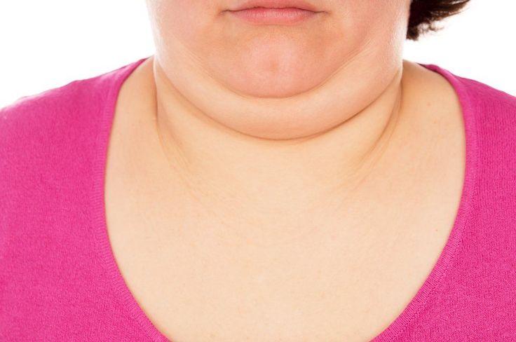 5 formas de reducir la papada y tonificar el cuello