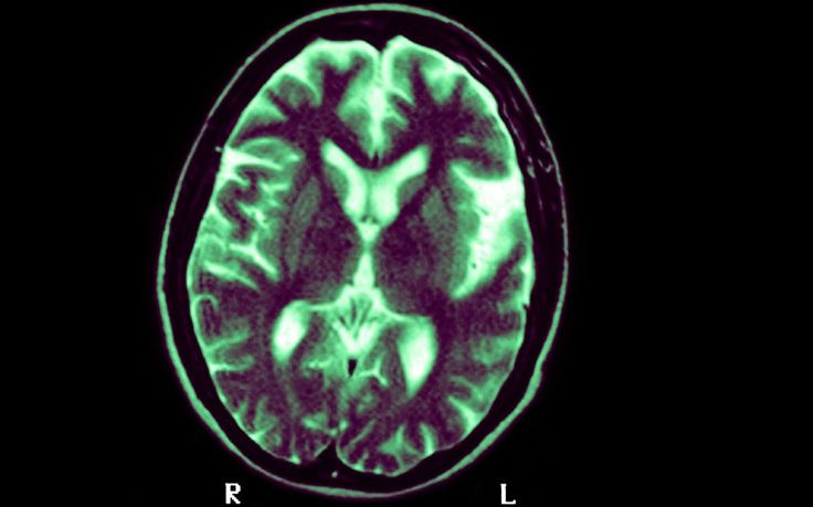 A new study in America gives hope of a breakthrough in finding a cure for   Alzheimer's