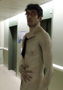 javier botet marfan syndrome