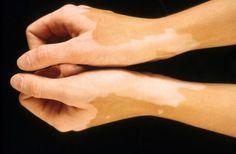 Le monde entier célèbre cette découverte des médecins Cubains traitement du vitiligo