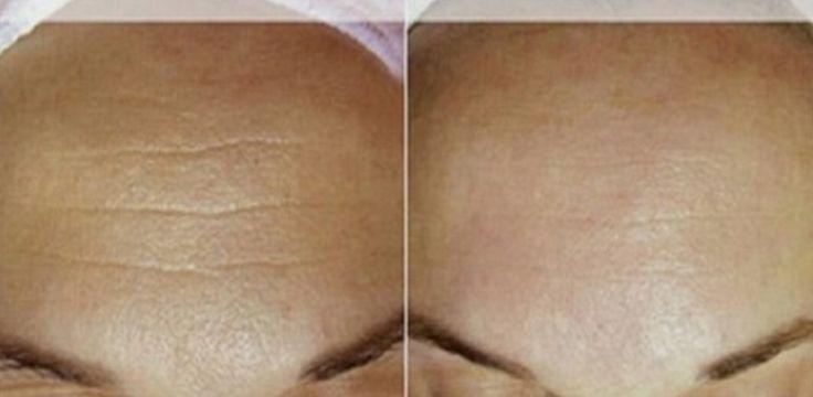 Conoce uno de los mejores tratamientos naturales con el que conseguirás eliminar arrugas en una semana. !Después de 7 días tu rostro será otro!