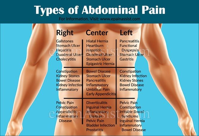 17 Best Abdominal Pain Images On Pinterest Abdominal
