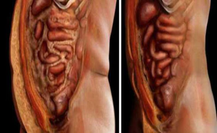 JUST USE THESE 2 INGREDIENTS TO EMPTY ALL DEPOSITS OF FAT AND PARASITES OF YOUR BODY WITHOUT EFFORT | Life is Good