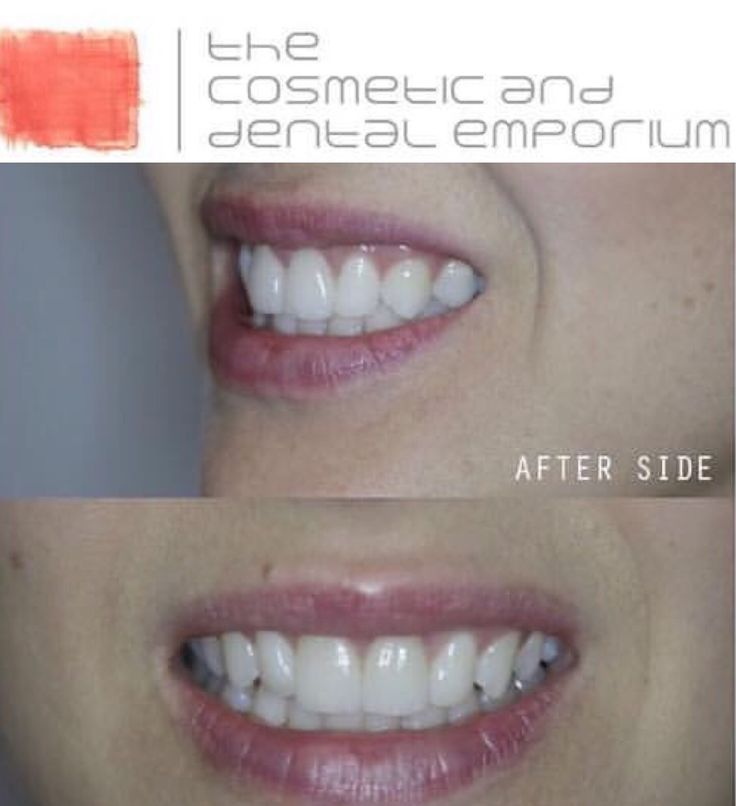 Smile Veneers Smile makeover Wedding  Cape town