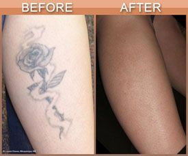 Best Option for Tattoo Removal on Long Island is Laser Treatment: Perfect Body Laser and Aesthetics explains why the best option for tattoo removal is laser treatment.
