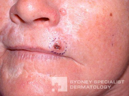 Early Stage Skin Cancer Precancerous Skin Lesions And