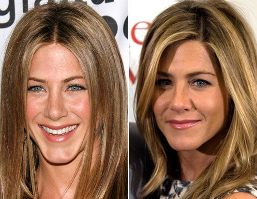 25 Best Ideas About Jennifer Aniston Plastic Surgery On