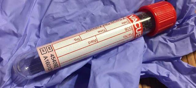 Πιερία: Αυξάνονται τα κρούσματα HIV σε 50άρηδες - Πλήθος π...