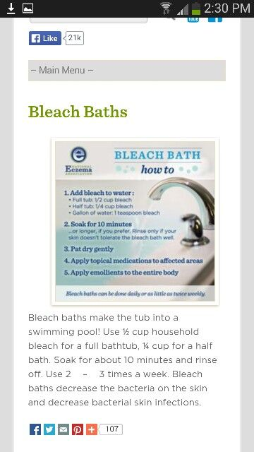 Bleach bath for eczema