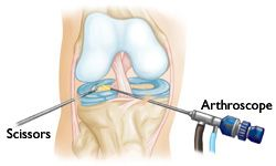 Knee Arthroscopy-OrthoInfo - AAOS