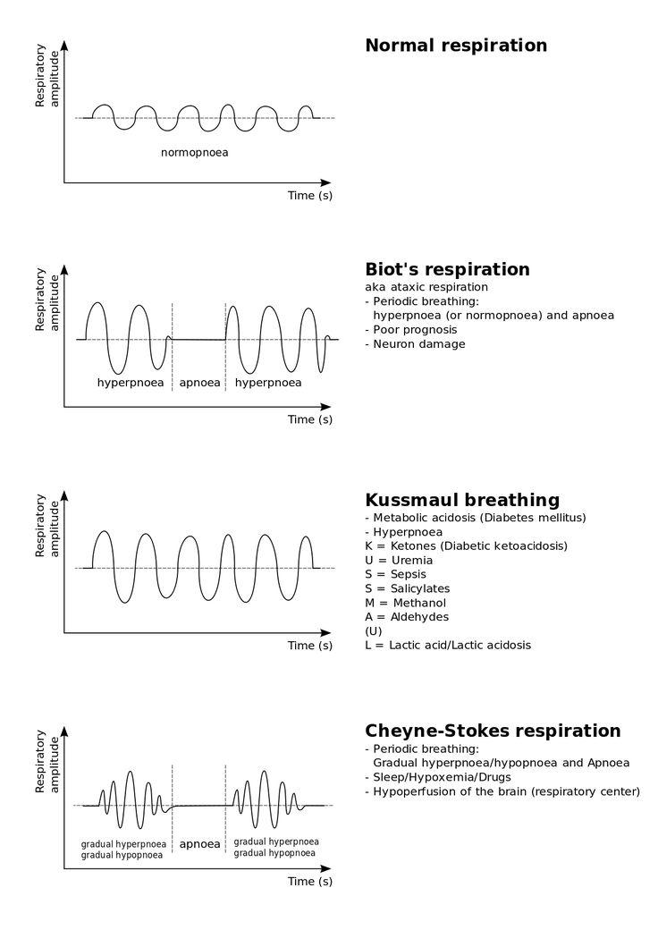 Vintage Breathing abnormalities Cheyne uStokes respiration Wikipedia the free encyclopedia