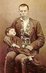 Early Post Mortem Photography: Dead Baby with Father