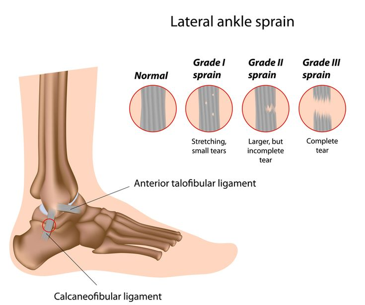 best 25+ ligaments in ankle ideas only on pinterest | ligaments of, Human Body