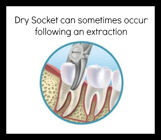 Dry socket video