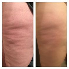 The appearance of cellulite can be improved when you address the root cause, which is fascial adhesions. Fascia is a vital system of connective tissue in the body, that affects the body in numerous ways. The #FasciaBlaster was specifically designed to release the tight fascial adhesions that cause those stubborn dimples we've all been told we have to live with...not anymore!