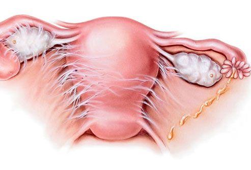 Hemorrhagic Ovarian Cyst Natural Treatment