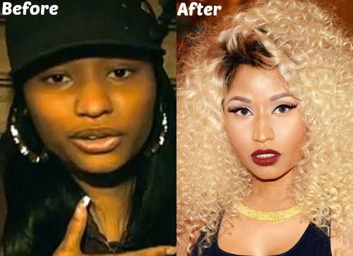 Nicki Minaj Nose Job Before And After Pinterest