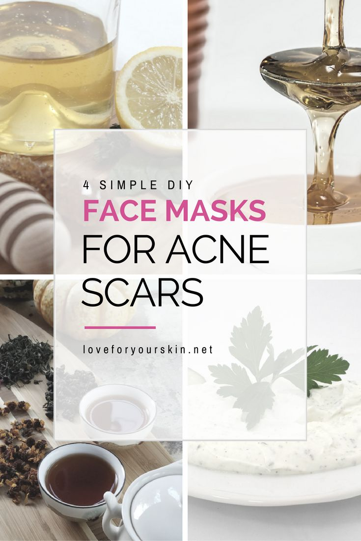 There are a ton of natural remedies used for acne scarring. Here is a great list of 4 diy face masks for acne scars that you can use to combat scars.