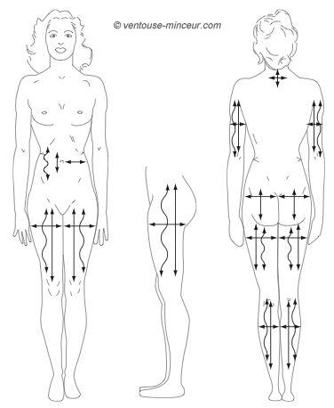 Ventouse cellulite