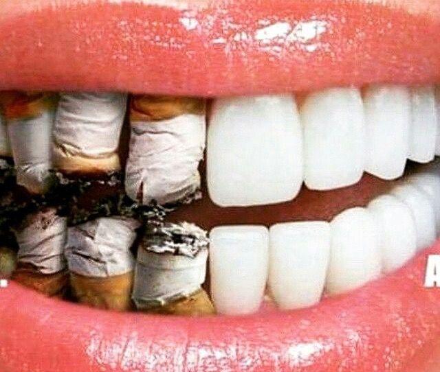 Tabagismo fator predominante nos casos de câncer bucal. Faça um exame preventivo com seu cirurgião dentista se possue esse mau hábito.!