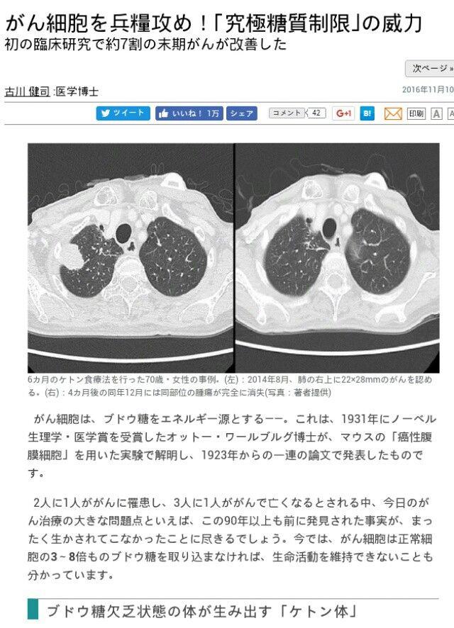 『重曹』は癌や、被爆、肝臓病、  インフルエンザ、アレルギー、虫歯など、  あらゆる病気を治す効果がある?!    腎臓病・胃潰瘍・便秘・痛風など…  コップ一杯分の水に小さじ半分程度を  溶かし重曹水を作り、それを飲むだけ!  重曹=炭酸水素ナトリウム  重曹は癌や、被爆、虫...