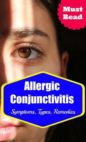 Allergic Conjunctivitis Symptoms, Types and Treatment  #allergy #health