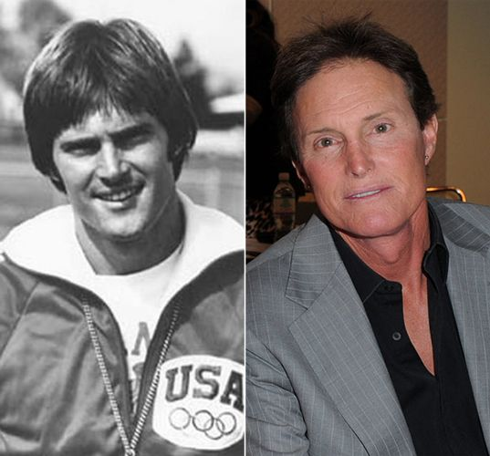 Bruce Jenner: Before and After Plastic Surgery creepy as all get out