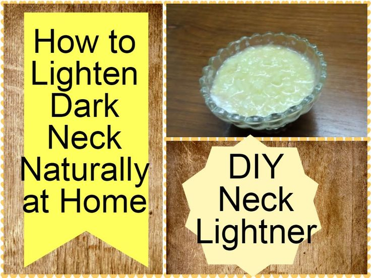 how to get white underarms home remedy