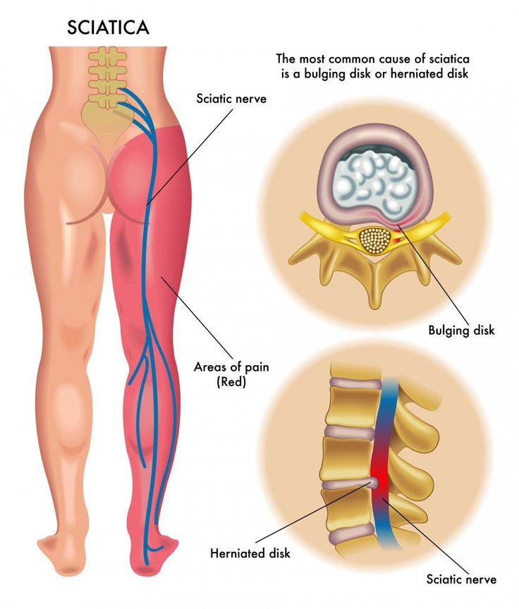 The sciatic nerve is one of the largest nerves in the body. It begins at the lower spine and runs through the buttocks and down the lower limb to the foot. This nerve provides movement, feeling and…