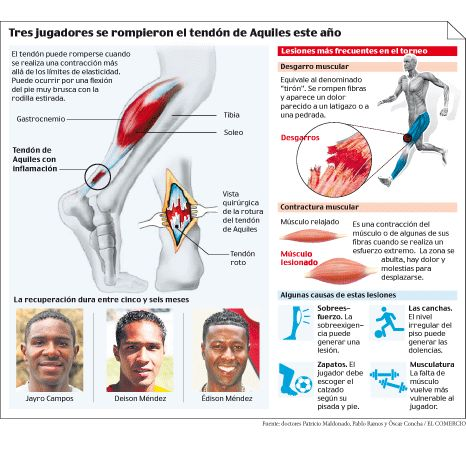 La #Fisioterapia se vuelve imprescindible después de haber sido sometido a una operación por rotura de ligamentos. ¿En qué consiste este mal y por qué es tan común entre los deportistas?