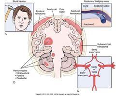 intracranial hemorrhage - Google Search
