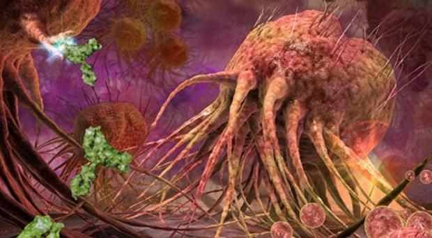 Научные открытия: ученые узнали, как раковые клетки сумели обойти иммунную систему человека http://joinfo.ua/health/1197646_Nauchnie-otkritiya-uchenie-uznali-rakovie-kletki.html  Ученые сделали научные открытие, когда исследовали раковые клетки. Также им удалось узнать, как эти клетки обманывают организм человека.Научные открытия: ученые узнали, как раковые клетки сумели обойти иммунную систему человека, подробнее...