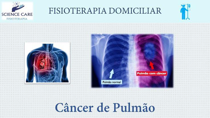 Câncer de Pulmão - Fisioterapia Respiratória - Science Care Fisioterapia
