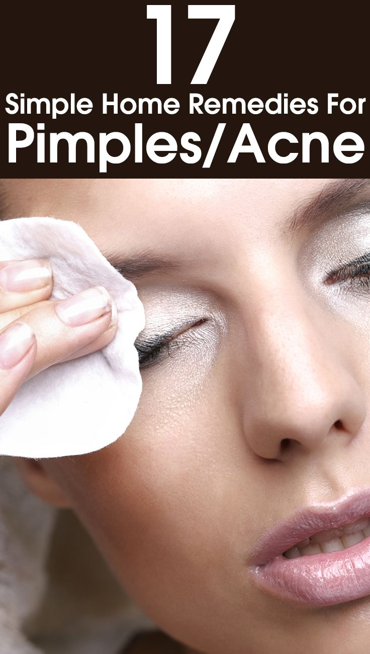 17 Simple Home Remedies For Pimples/Acne