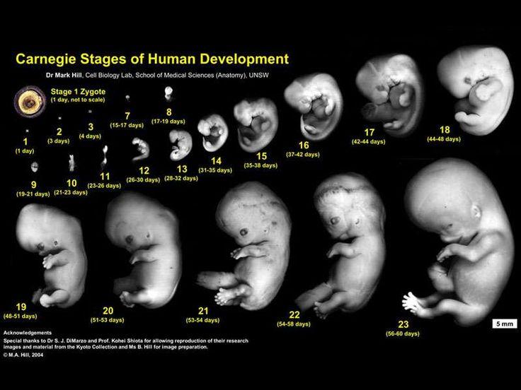 pregnancy week by week | Ultrasound | Pinterest | Mustard ...