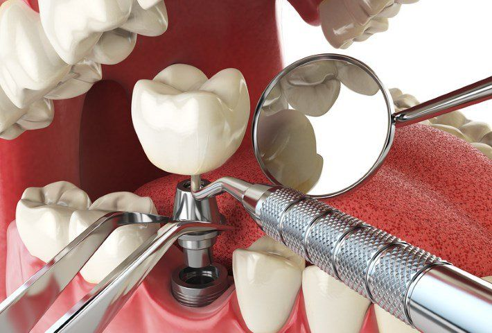 Вживление имплантов имеет немало преимуществ перед прочими вариантами установки зубных протезов. Во-первых, имплантация не требует обточки здоровых зубов и создания зубных мостов. Во-вторых, импланты являются отличной альтернативой съемным протезам, полностью избавляя от дискомфорта, которыми «славятся» последние. А ведь некоторые пациенты совсем не могут носить вставную челюсть из-за повышенной чувствительности слизистой полости рта.