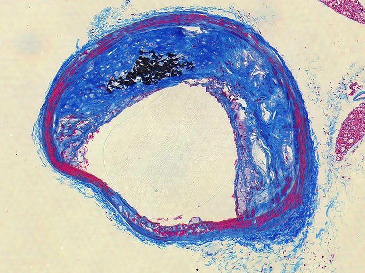 Модифицированная окраска по Масону, дополненная окраской по Фон Косса для выявления солей фосфора (часто вместе с ним и кальция). Срез артерии пораженной атеросклерозом здесь коллагеновые волокна окрашены в синий цвет, а черные пятна – отложения фосфатов в стенке сосуда.