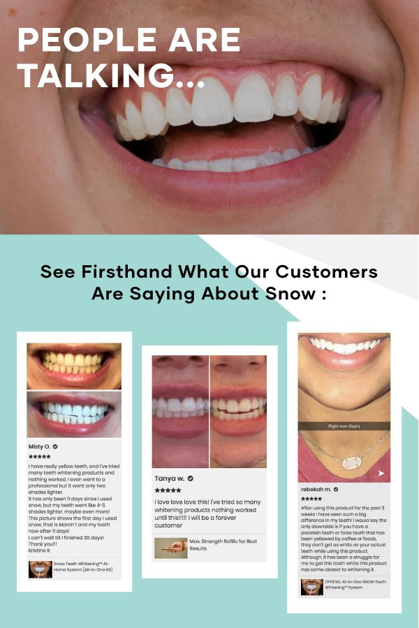 Prevent Snow Teeth Whitening